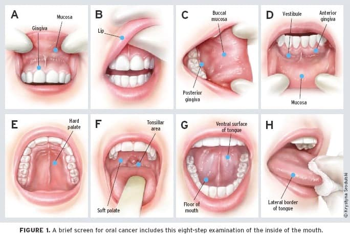 oral cancer exam