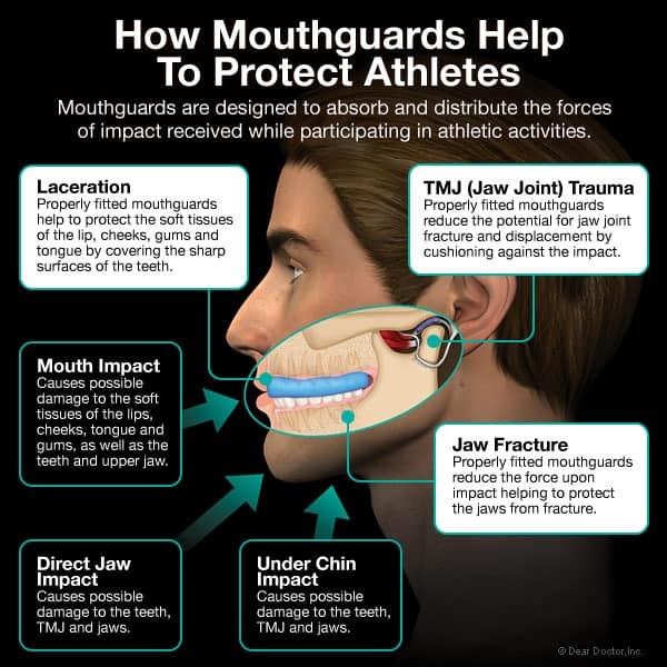 how-mouthguards-protect-athletes